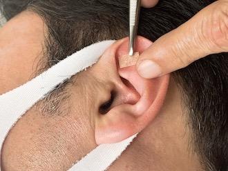 耳つぼ施術風景