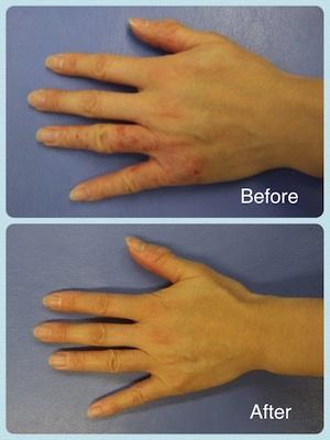 皮膚炎の改善例