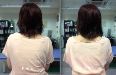 肩の高さの改善例